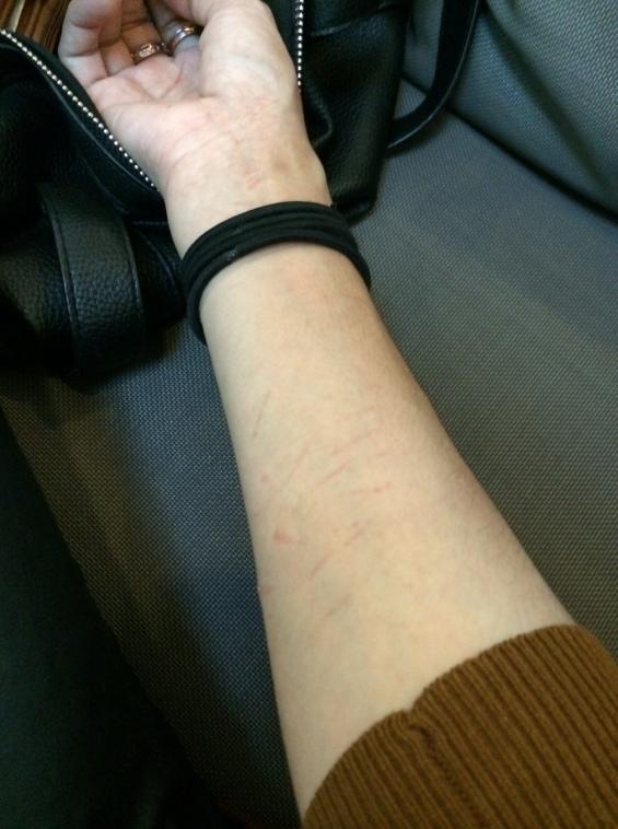 Mis brazos rasguñados y mordidos